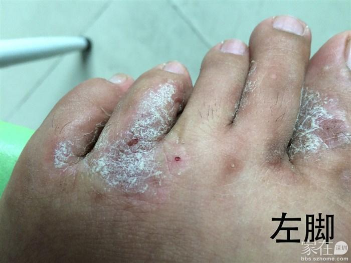 各位亲们有治疗湿疹快速好起来的土方法吗