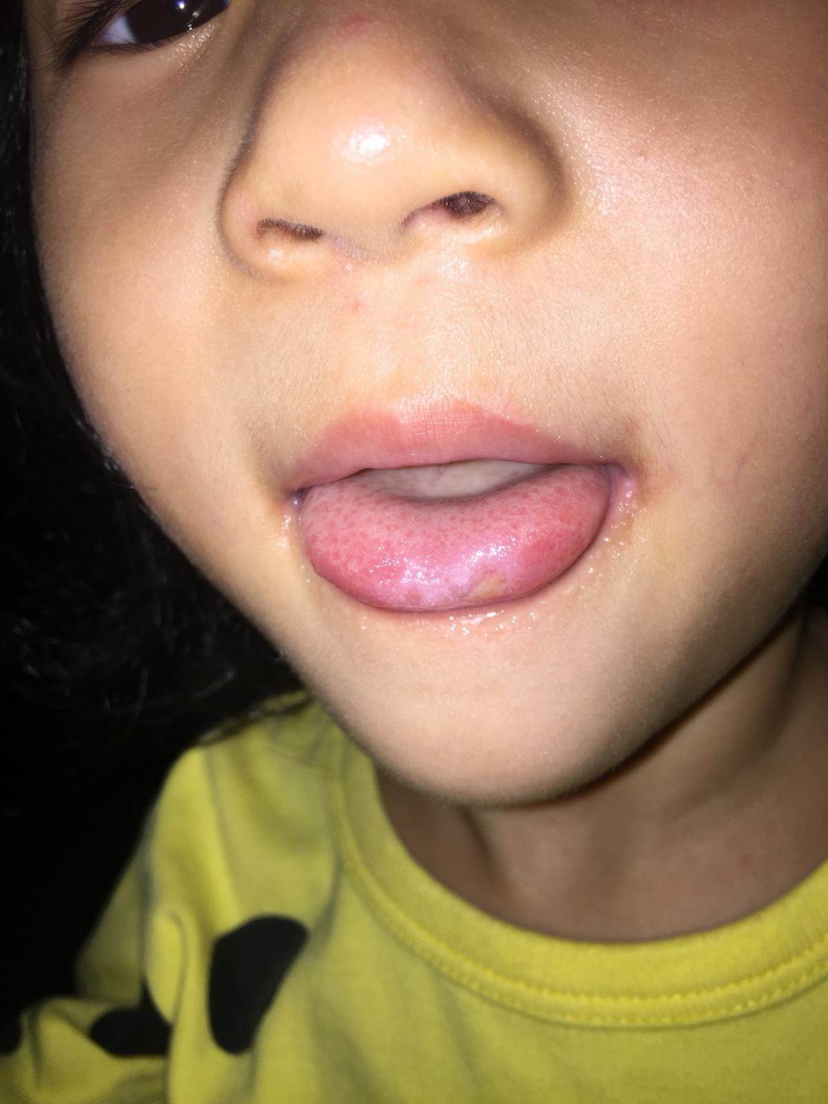 求助:四岁小孩经常长疱疹,舌头长疮